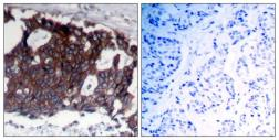 Anti-Her2 / ErbB2 antibody used in IHC (Paraffin sections) (IHC-P). GTX50425