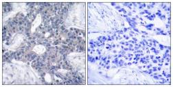 Anti-ZAP70 antibody used in IHC (Paraffin sections) (IHC-P). GTX50508