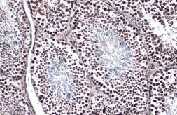 Anti-TET1 antibody [GT1462] used in IHC (Paraffin sections) (IHC-P). GTX627420