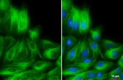 Anti-Vimentin antibody [GT7812] - VetSignal used in Immunocytochemistry/ Immunofluorescence (ICC/IF). GTX635085