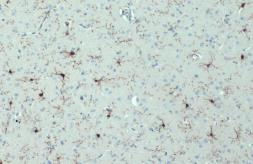 Anti-Iba1 antibody [HL22] used in IHC (Paraffin sections) (IHC-P). GTX635363