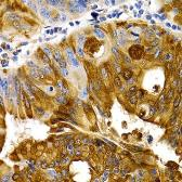Anti-TFF1 antibody used in IHC (Paraffin sections) (IHC-P). GTX64461