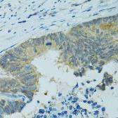 Anti-CYP2B6 antibody used in IHC (Paraffin sections) (IHC-P). GTX64899