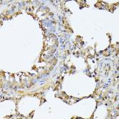 Anti-Proteasome 20S beta 3 antibody used in IHC (Paraffin sections) (IHC-P). GTX66592