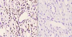 Anti-PMS2 antibody used in IHC (Paraffin sections) (IHC-P). GTX66694