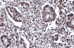 Anti-53BP1 antibody used in IHC (Paraffin sections) (IHC-P). GTX70310