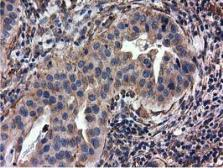 Anti-CYB5R3 antibody [2A10] used in IHC (Paraffin sections) (IHC-P). GTX84646
