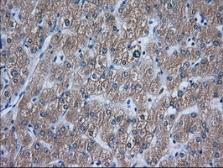 Anti-ACAT2 antibody [1B7] used in IHC (Paraffin sections) (IHC-P). GTX84968