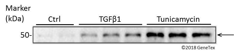 ATF4 antibody