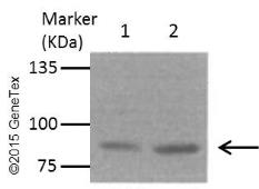 Anti-beta Catenin antibody [N1N2-2], N-term used in Western Blot (WB). GTX101435
