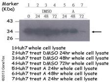 Anti-Cyclin D1 antibody [N1C3] used in Western Blot (WB). GTX108624
