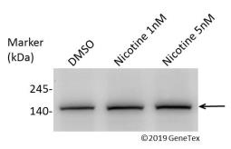 Anti-Vinculin antibody [N3C1], Internal used in Western Blot (WB). GTX109749