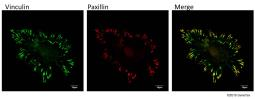 Anti-Paxillin antibody used in Immunocytochemistry/ Immunofluorescence (ICC/IF). GTX125891